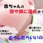 新生児や赤ちゃんの湿疹、頭や顔にできたらどうしたらいいの?